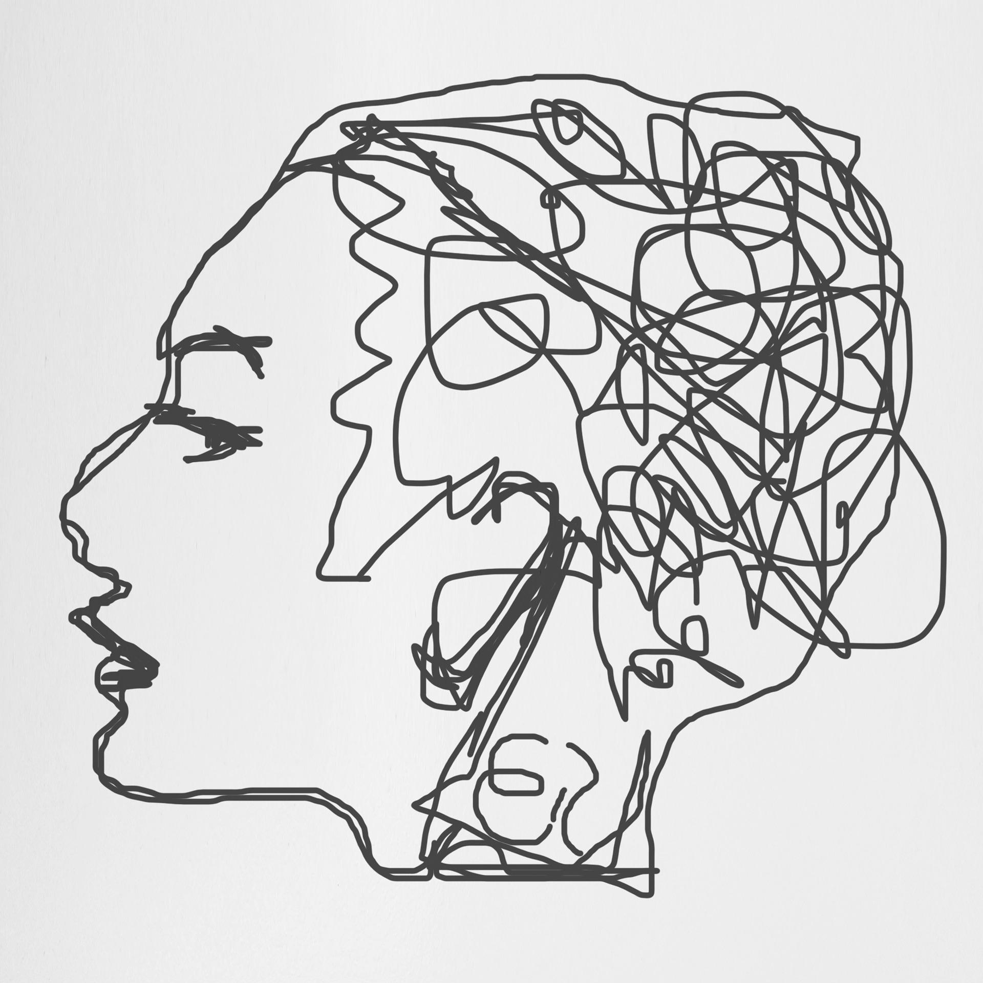 Otro reto-Sesgo cognitivo